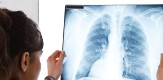 Lung radiography | Doctor examining a lung radiography