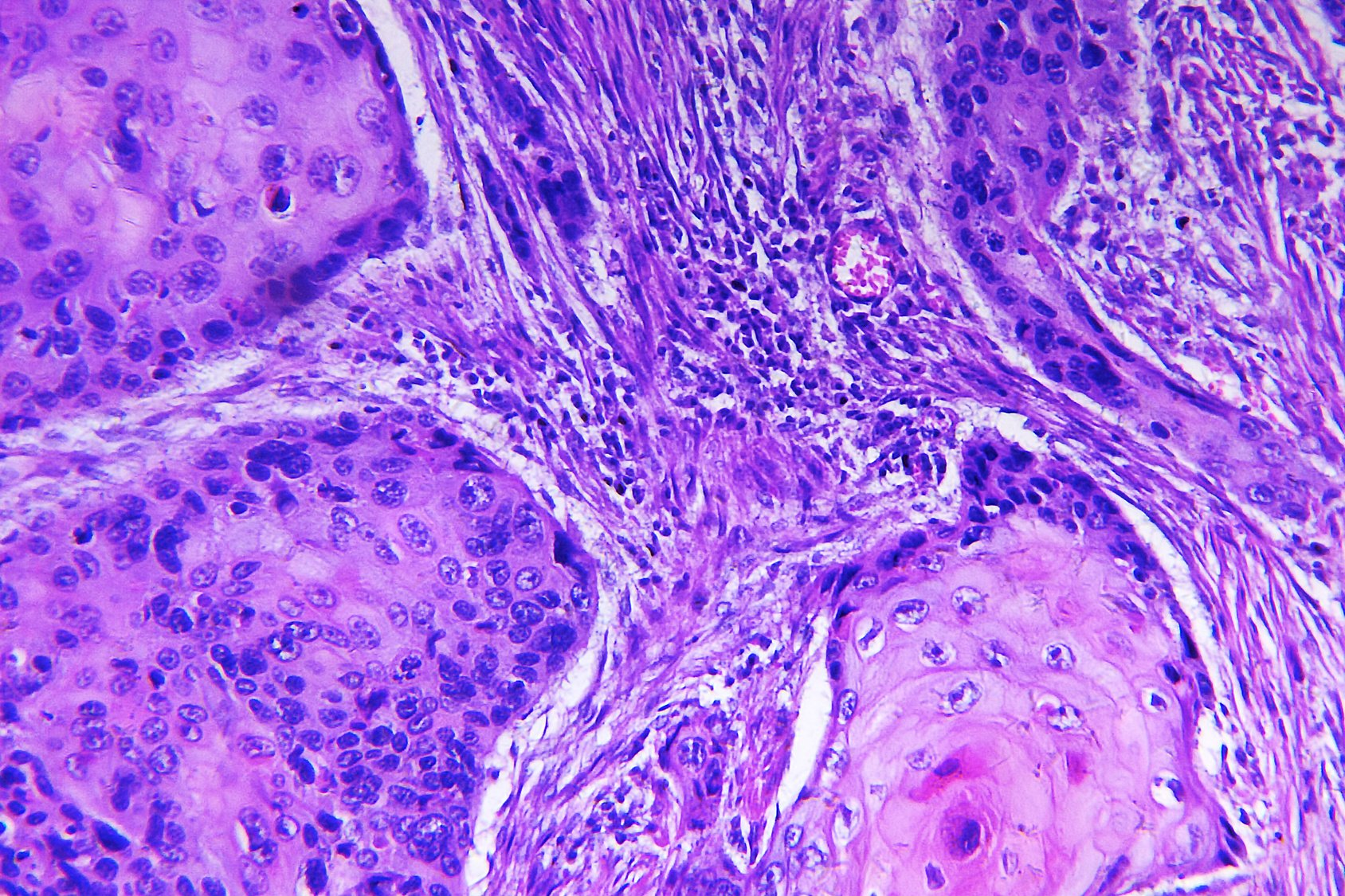 Researchers Identify Protein That Makes Skin Cancer Cells More Invasive Onco Zine