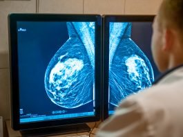 A doctor examines mammogram snapshot of breast of patient on the monitors.