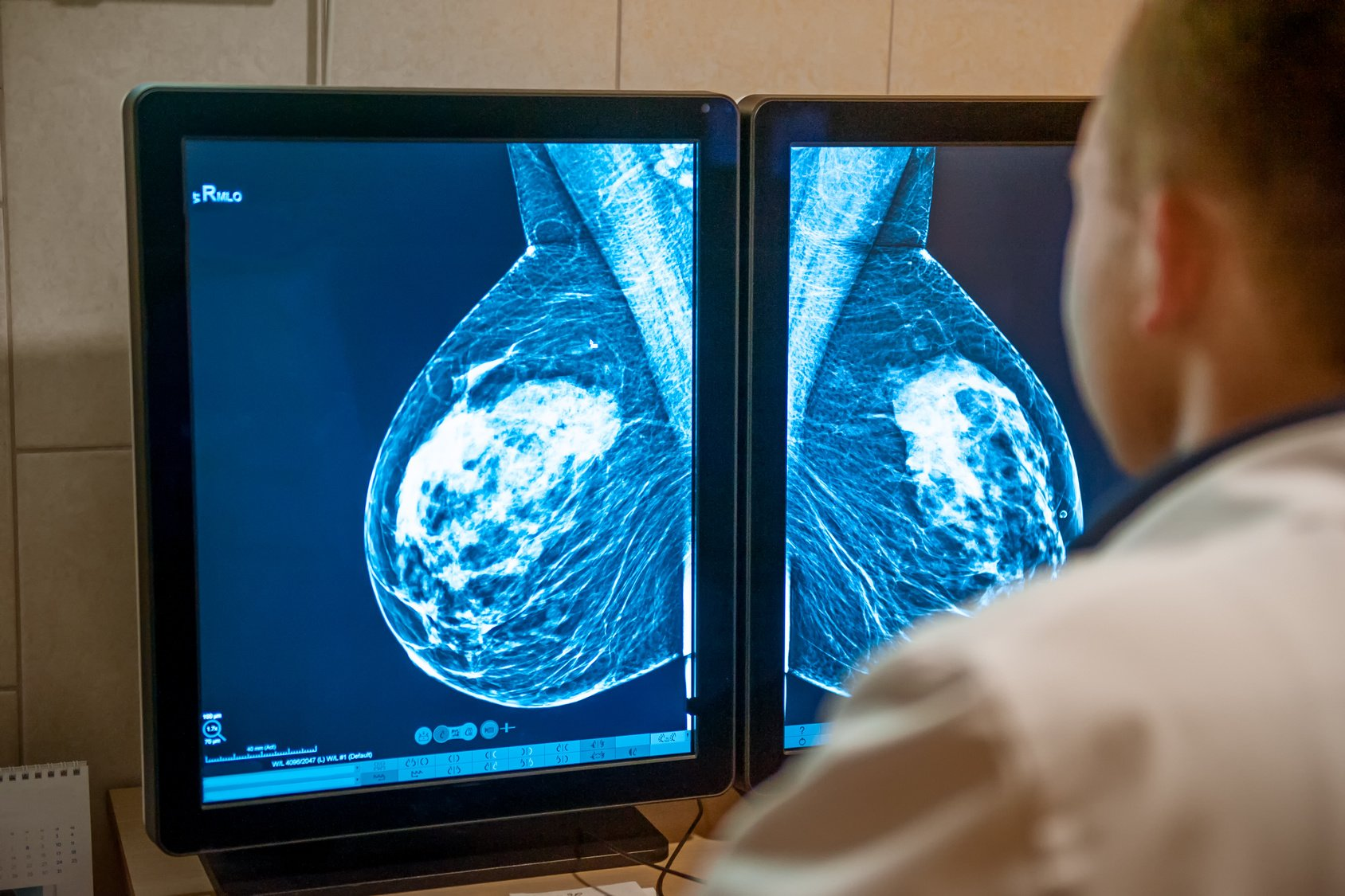 Decreasing Breast Cancer False Positives With Nv Vpac1 Pet Scan