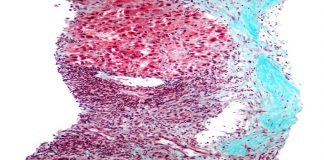 Low magnification micrograph of hepatocellular carcinoma the most common form of primary liver cancer. Features on image: End-stage cirrhosis - blue collagen (fibrosis); Mallory bodies; Loss of normal liver architecture; Nuclear atypia.