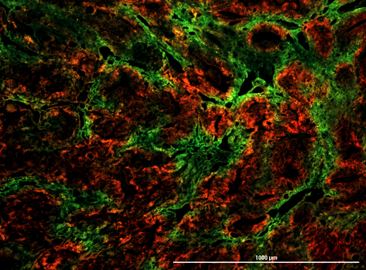 Cells in green are hypoxic cells that are permanently marked so they can be followed throughout the metastatic process. The red cells have not experienced hypoxia. Photo Courtesy: Yu Jung Shin
