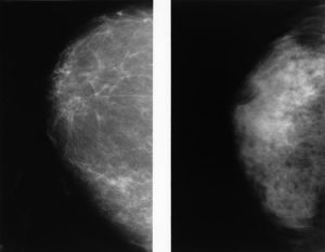 Photo 1.0: A side-by-side of two normal mammograms showing the difference between a dense breast (left) and a fatty breast (right).